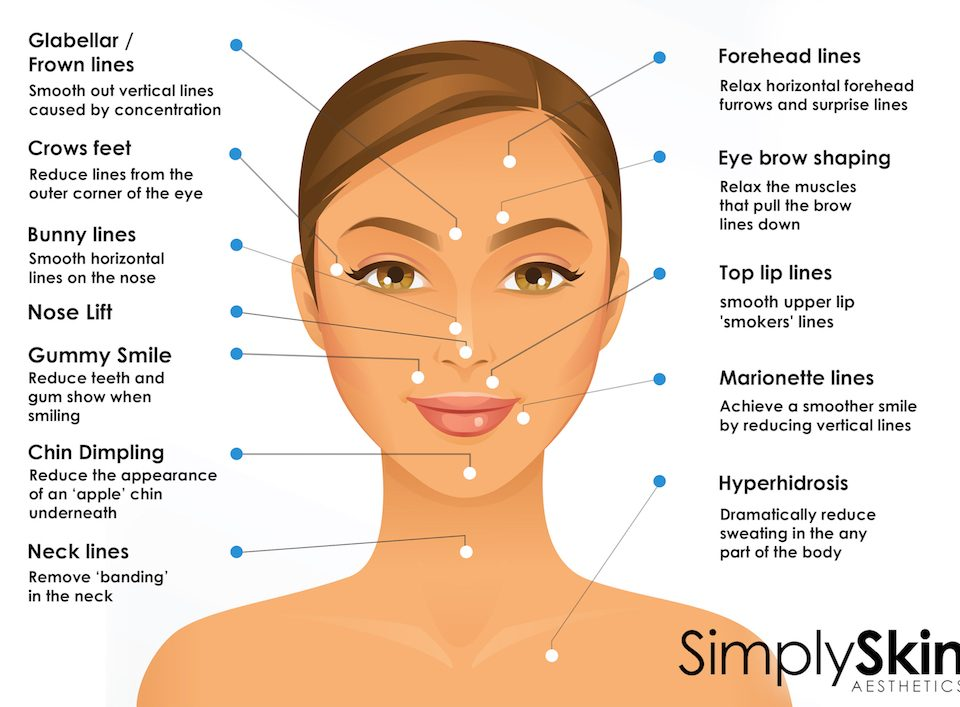 botox-treatment-areas-epsom