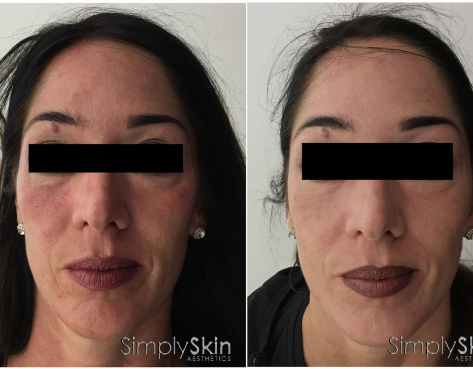 vampire-face-lift-before-after
