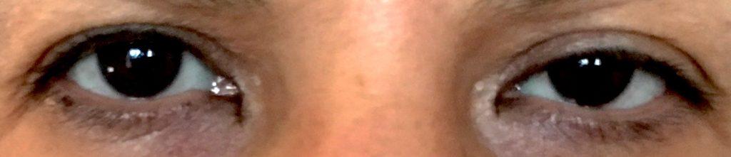eye-lid-ptosis-botulinum-toxin