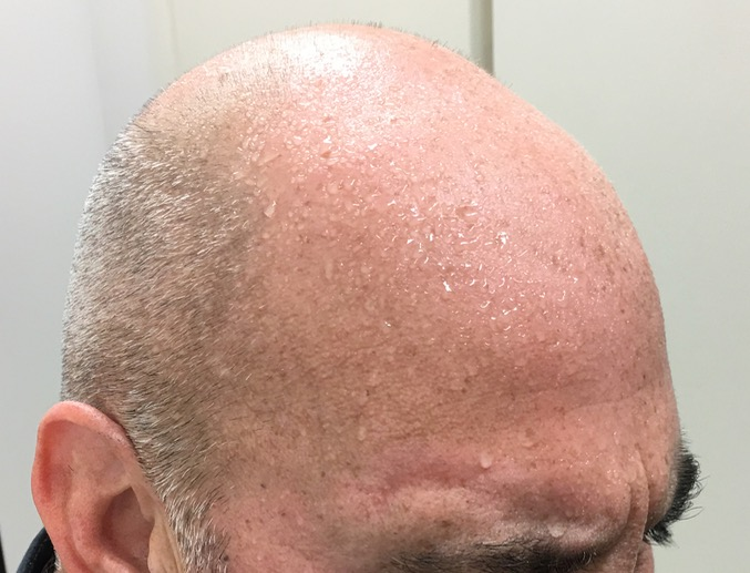 male with hyperhidrosis sweating forehead