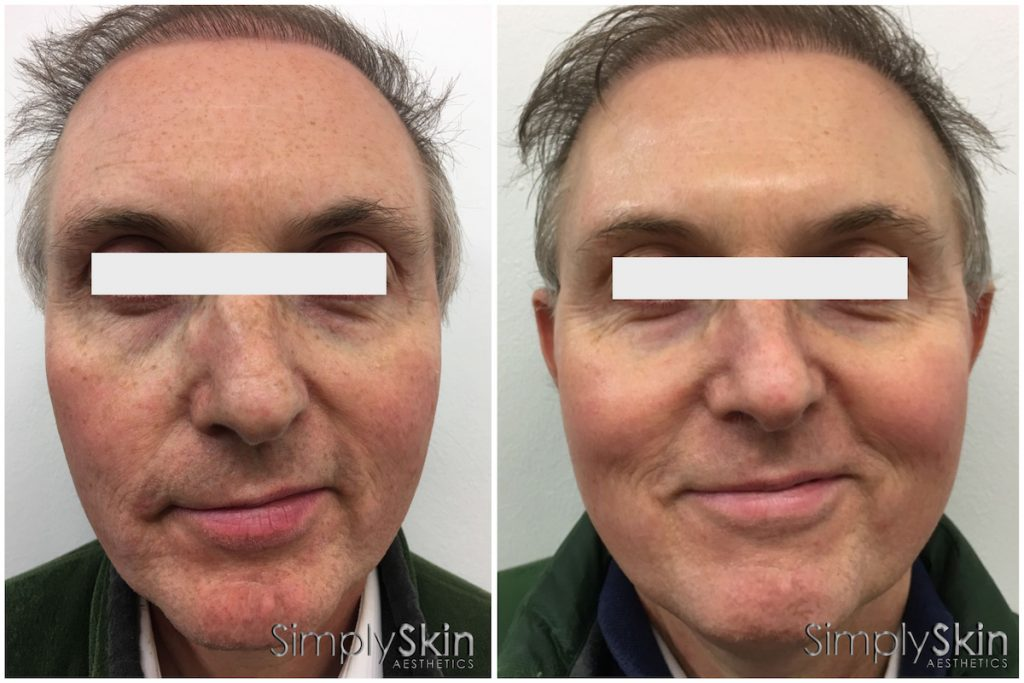prp-face-lift-before-after