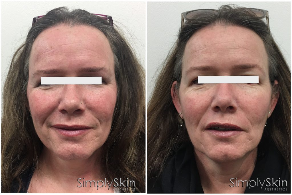 Middle aged female before and after PRP for skin central