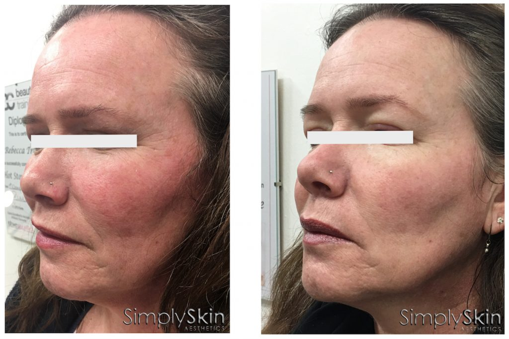 Middle aged female before and after PRP for skin