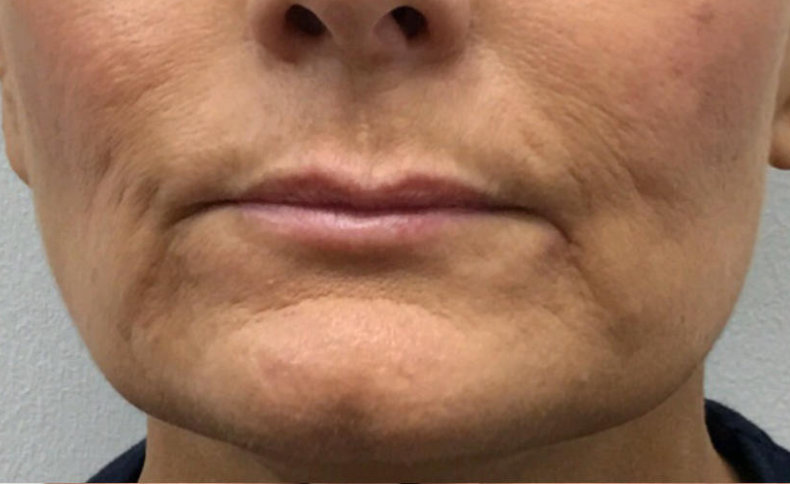 Ageing of the lower face with marionette lines and reduced maxilla and lip volume