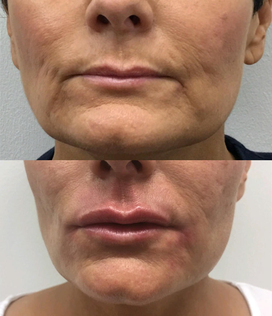 Rejuvenation of the lower face with fillers to reduce marionette lines and enhance maxilla and lip volume