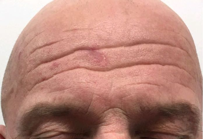 forehead-wrinkles-botox-man
