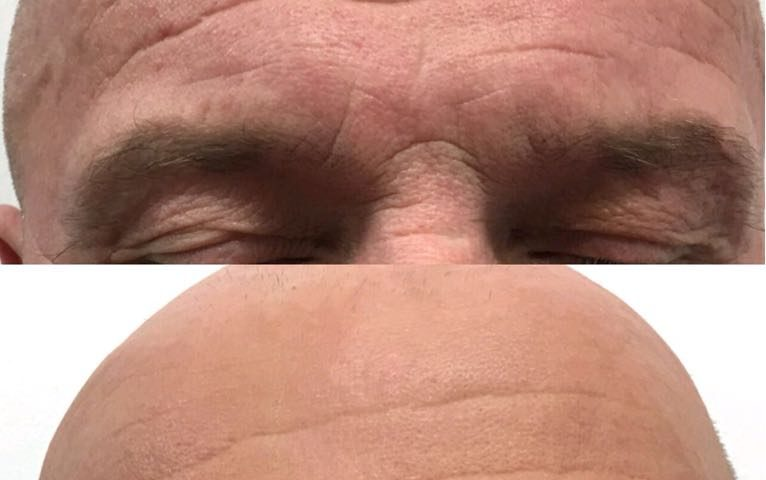 Male with deep forehead lines