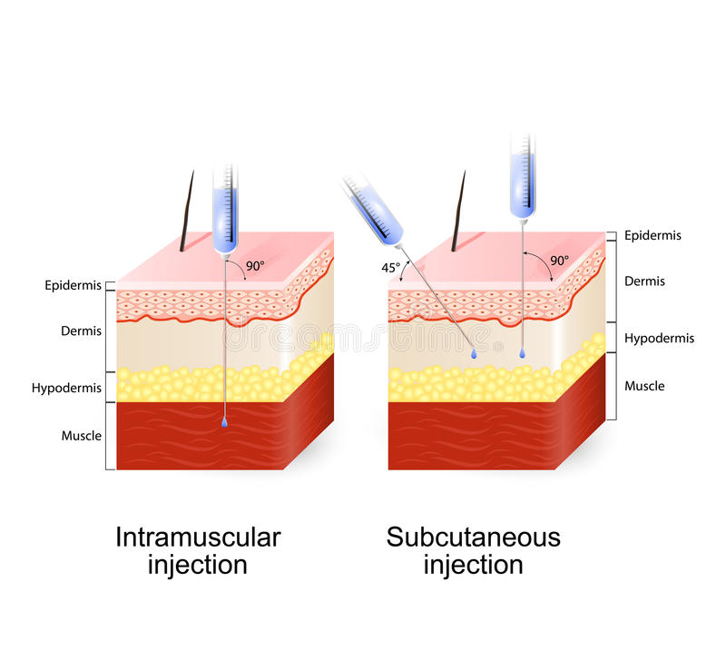 PRP-injection-subcutaneous-injection-angle-depth-injections-earls-court