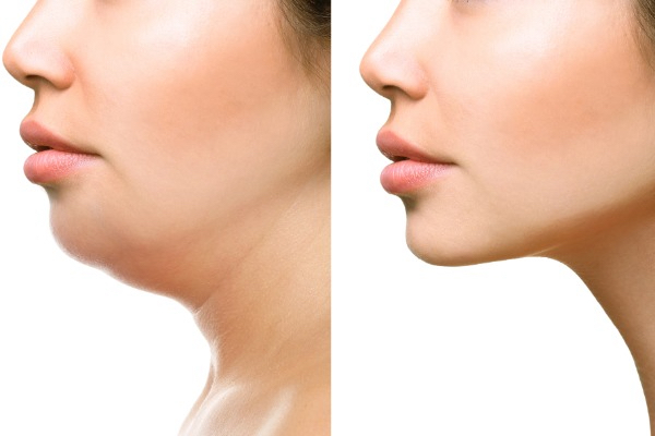 fat dissolving areas at simplyskin clinic earls court