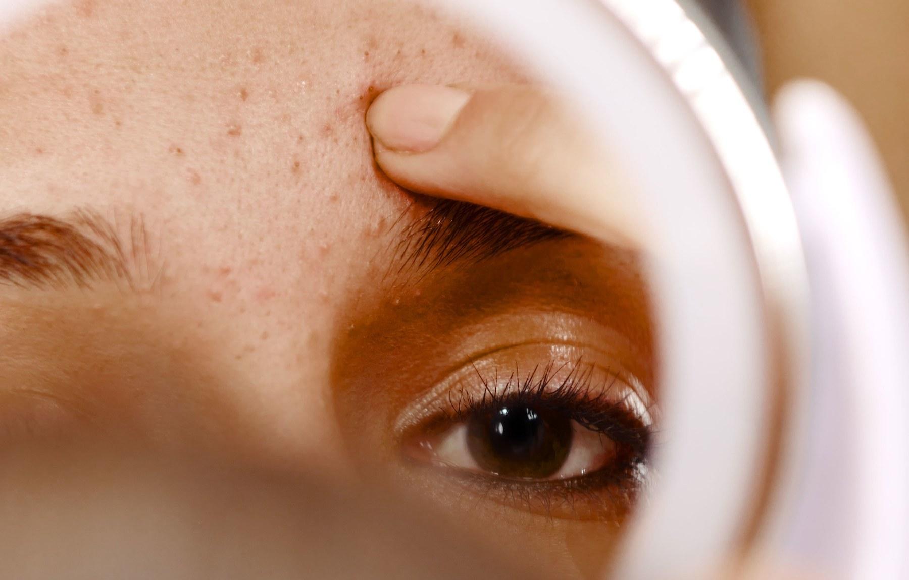 best-acne-scar-skin-treatment-earls-court