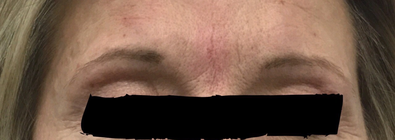 filler-frown-line-brow-lift-earls-cour-after