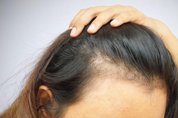 hair-loss-female-pattern-earls-court