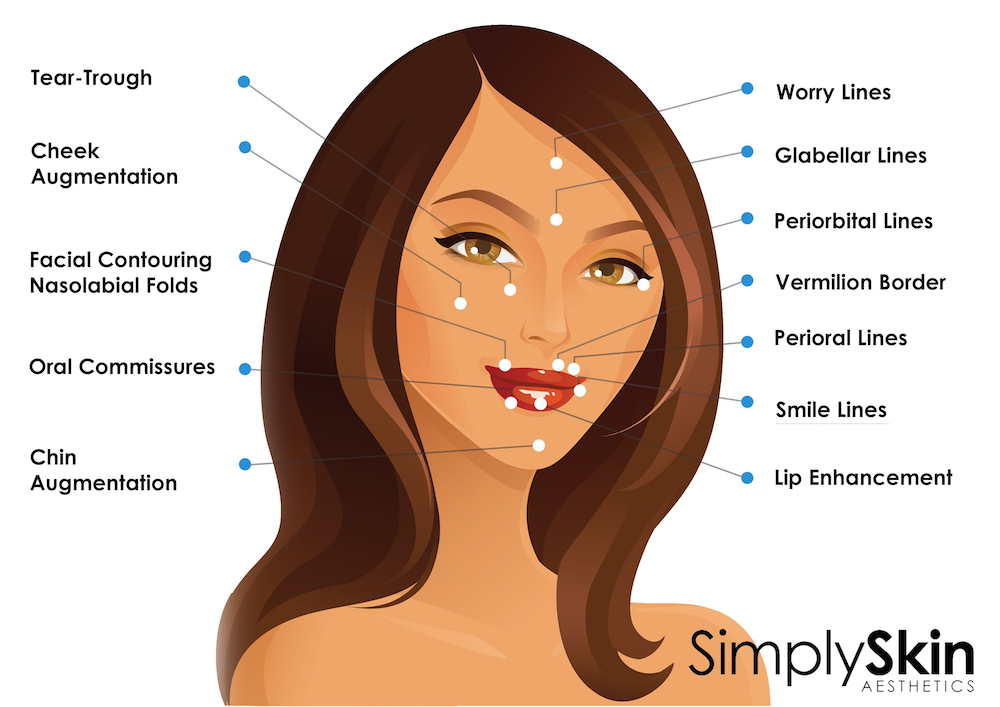 filler injection areas at simplyskin clinic earls court